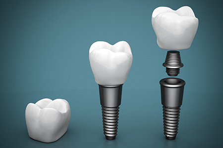 Dental Implants Mills River NC-Mills River Family Dental